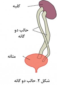 Duplicated ureter Figure 2