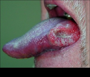 HPV-Oral Cancer Fig 1
