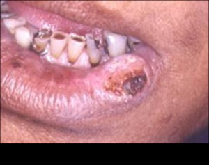 HPV-Oral Cancer Fig 3