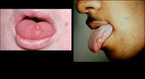 HPV-Oral Cancer Fig 7