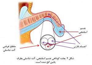 Penile curvature fig 2