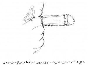 Penile lenghthening fig 2