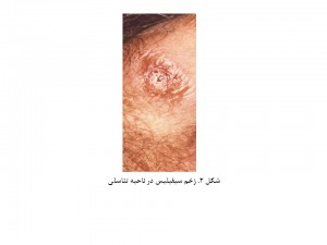 Mens Health-fig 2