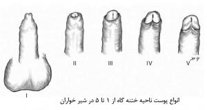Phimosis-Figure 2