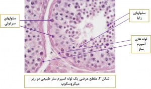 Sertoli Cell Only Syndrome-Fig 2