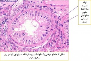 Sertoli Cell Only Syndrome-Fig 3
