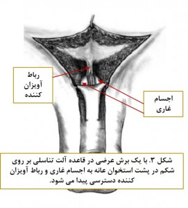 Surgical treatment of penile deviation fig 3