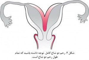 Bicornuate uterus fig 2