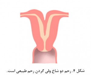 Bicornuate uterus fig 4