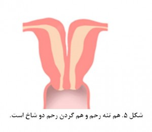 Bicornuate uterus fig 5