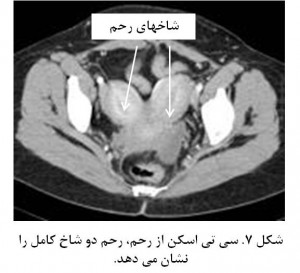 Bicornuate uterus fig 7