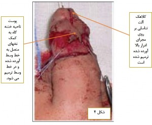 Hypospadias Repair-MEMO-Figure 4