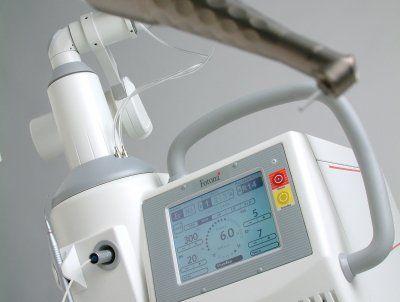 Er YAG laser-Figure 2