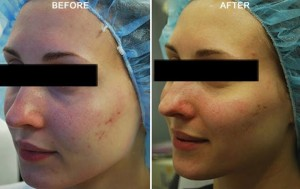 Er YAG laser-Resurfacing.docx-Figure 2