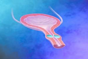 Er. Yag Laser-Urinary incontinence-1-Fig 1